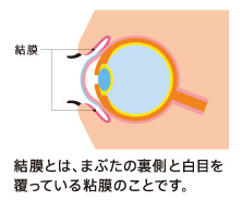 結膜とは、まぶたの裏側と白目を覆っている粘膜のことです。